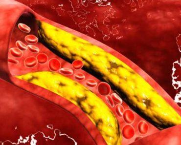 Artery Heart Health
