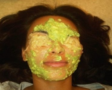 Avocado-–-Magical-Fruit-For-Youthful-Skin