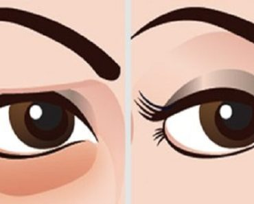 How-To-Get-Rid-Of-Stubborn-Eye-Bags-With-Essential-Oil-And-Aloe-Vera