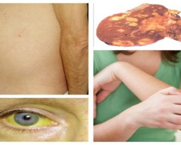 Most-Common-Symptoms-Of-Fatty-Liver-And-The-Best-Way-To-Cleanse-It