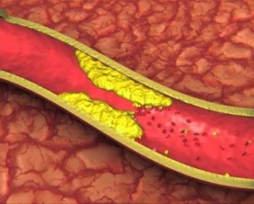 Take-4-Tablespoons-Of-This-Drink-Each-Morning-And-Say-Goodbye-To-Clogged-Arteries-High-Blood-Pressure-And-Bad-Cholesterol