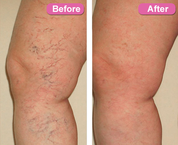 How To Naturally Get Rid Of Spider Veins On Legs