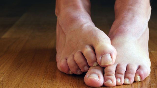 Identify-Lung-Cancer-With-the-Help-of-Your-Toe-nails