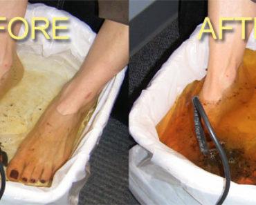foot-detox