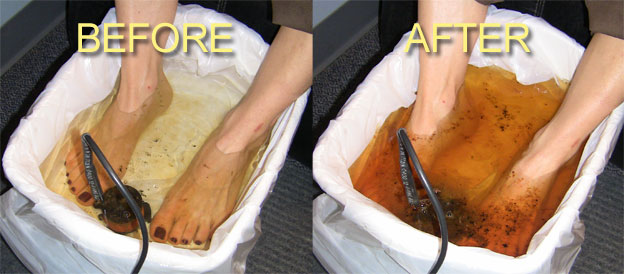 Foot Detox How To Flush Toxins From Your Body Through