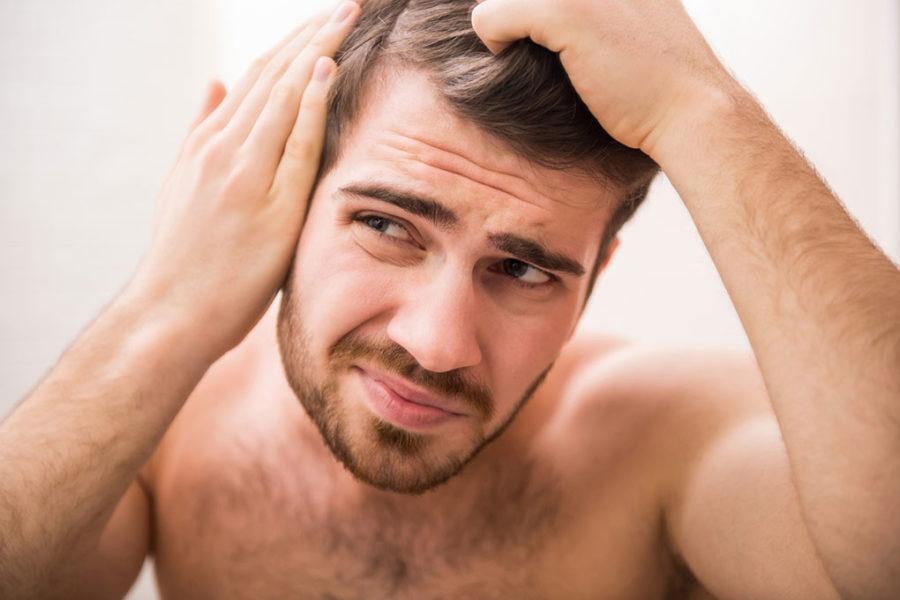 hair-loss-hereditary