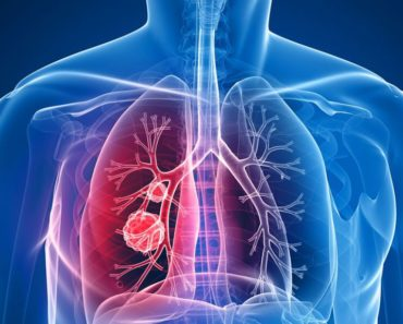 lung_cancer_main