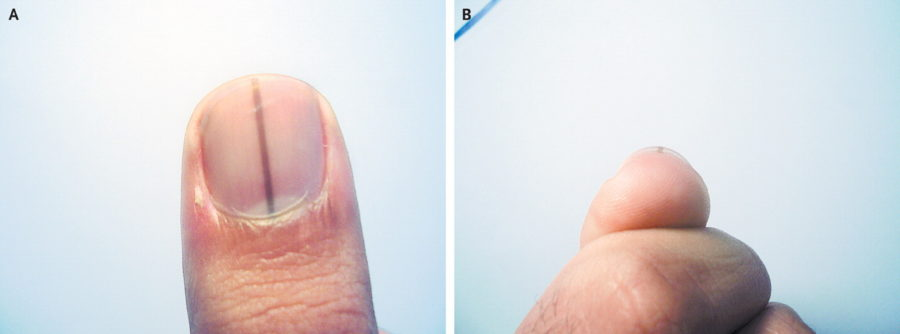 What Does Dark Lines Under Nails Mean Images Sock And Nail