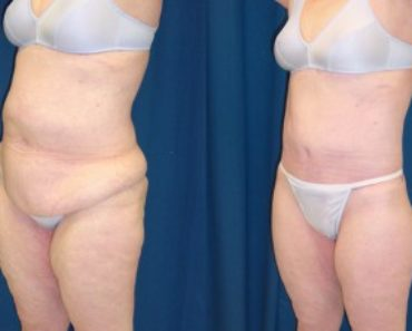 thumb_body-lift-before-after-a-6586