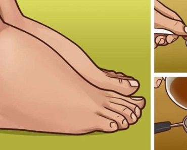 3-natural-remedies-for-swollen-feet-and-ankles