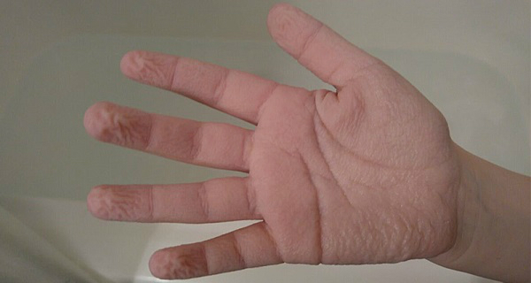 This is why your fingers get wrinkly when you have a bath