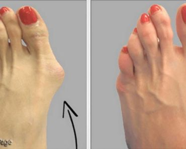 doctors-hide-this-recipe-heres-how-to-get-rid-of-bunions-completely-naturally