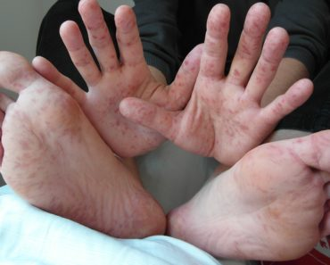 hand_foot_mouth_disease_adult_36years