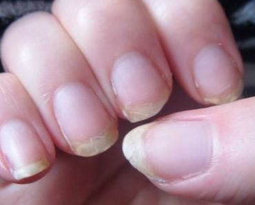 home-remedies-to-treat-the-splitting-brittle-finger-nails