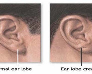 if-you-have-this-on-your-ear-lobe-your-heart-health-may-be-at-risk