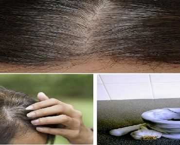 its-only-takes-5-minutes-to-eliminate-white-hair-regrow-hair-and-prevent-hair-fall