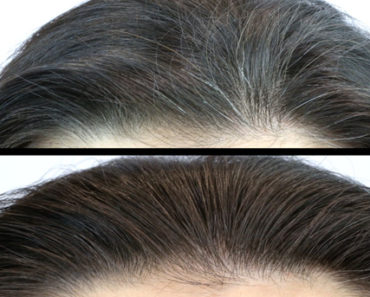 tested-home-remedies-for-grey-hair-before-after