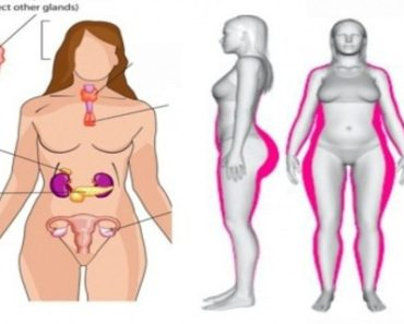 5-best-foods-to-prevent-hormonal-imbalance-in-women-and-5-foods-to-avoid