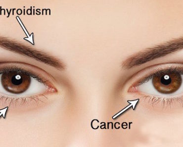 your-eyes-are-mirror-to-your-health-14-things-your-eyes-can-tell-you-about-your-health