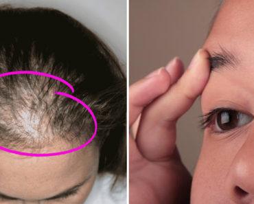 castor-oil-hair-loss-eyebrow