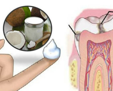 coconut-oil-to-fight-cavities