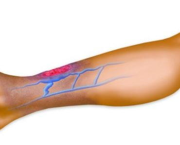 do-you-suffer-from-poor-circulation-heres-how-to-solve-the-problem-in-less-than-20-minutes
