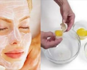 it-tightens-the-skin-better-than-botox-this-3-ingredients-face-mask-will-make-you-look-10-years-younger