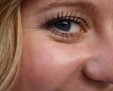Get rid of wrinkles with this anise seeds recipe