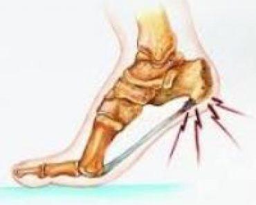 heels pain