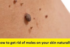 How to get rid of moles on your skin