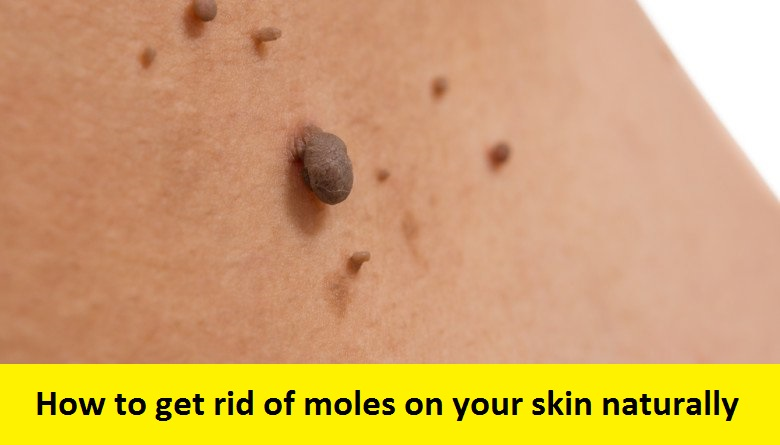 How To Get Rid Of A Body Mole Naturally