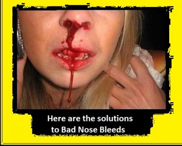 Solutions to bad nose bleed