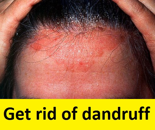 FINALLY 3 SIMPLE WAYS TO GET RID OFF DANDRUFF