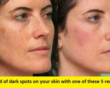 Remove and get rid of dark spots with these 5 remedies