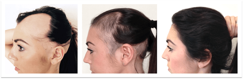 alopecia-areata- and cheeries cure