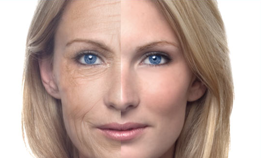 anti-aging effects of cheeries
